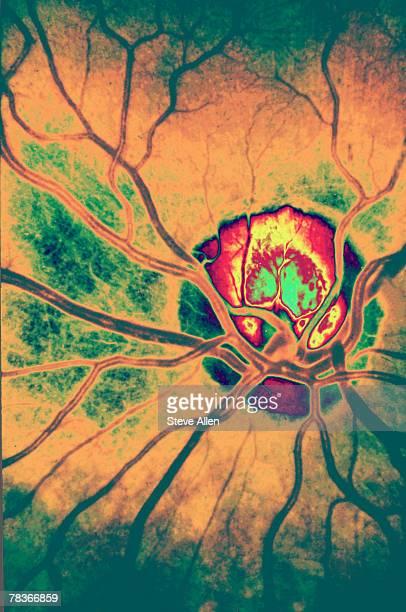Blood vessels in eye