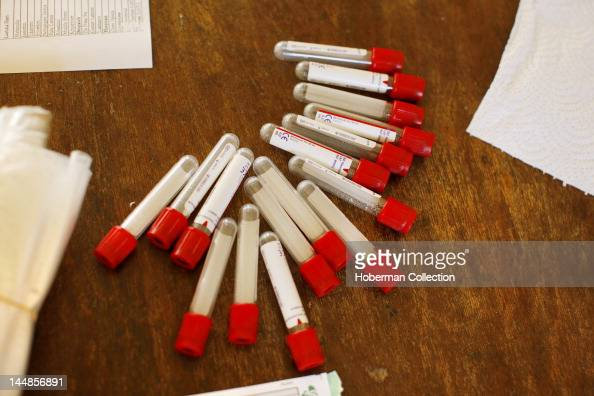 Blood vials for HIV testing
