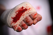 A close up of a fist in a bloodied bandage after fight. Shallow depth of field, focus on blood. XL image size.