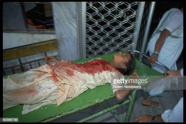 Bloodied Hindu rioting victim hurt in rampaging of militants out to raze mosque Babri Masjid erect Hindu temple to godking Rama