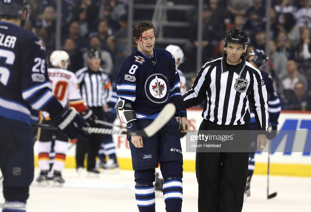 A bloodied Jacob Trouba #8 of the Winnipeg Jets skates to his bench after fighting Sam Bennett #93 of the Calgary Flames during NHL action on March 11, 2017 at the MTS Centre in Winnipeg, Manitoba.