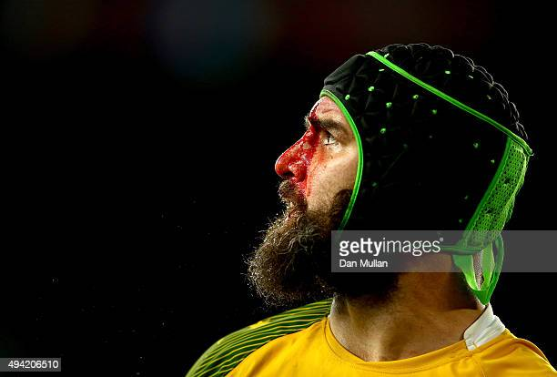 A bloodied Scott Fardy of Australia during the 2015 Rugby World Cup Semi Final match between Argentina and Australia at Twickenham Stadium on October...
