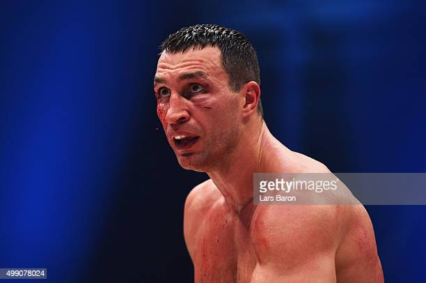 A bloodied Wladimir Klitschko looks on against Tyson Fury during the IBF IBO WBA WBO Heavyweight World Championship contest at EspritArena on...