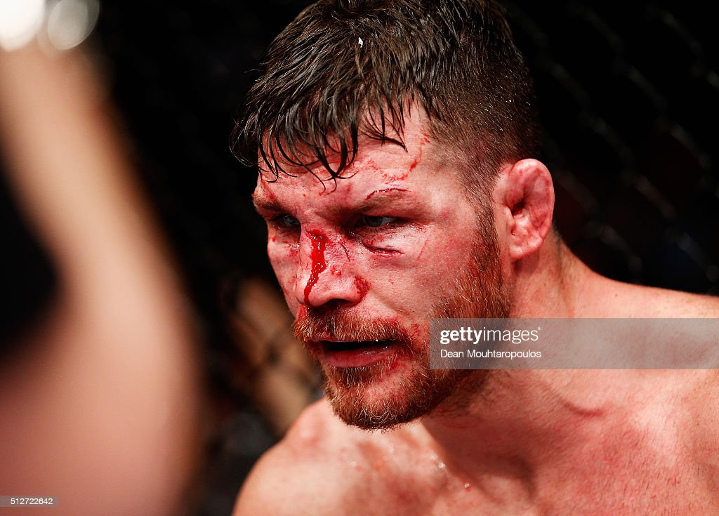 A bloody and battered Michael 'The Count' Bisping of England compete during his fight against Anderson 'The Spider' Silva of Brazil in their...