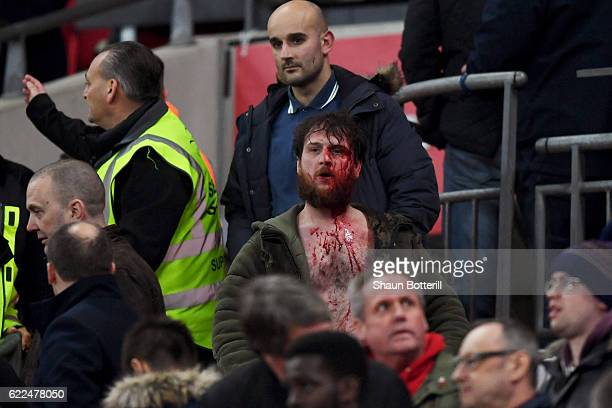 A bloody fan looks on from the stand during the FIFA 2018 World Cup qualifying match between England and Scotland at Wembley Stadium on November 11...