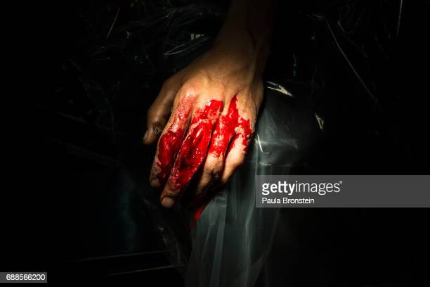 A bloody hand is seen in the operation room at the Emergency hospital As of April 2016 the Emergency hospital stated that in the first quarter their...