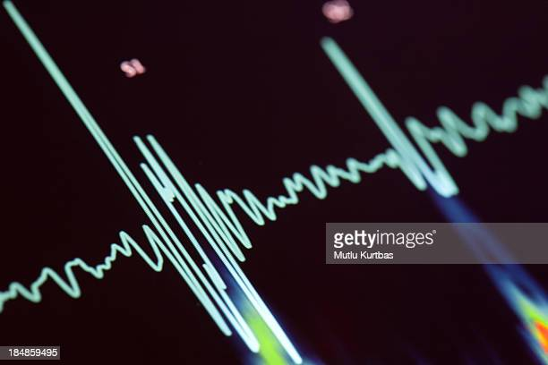 A blue heartbeat trace on a screen