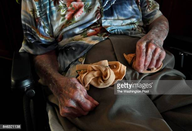 Bob had been wearing protective cloth sleeves for his skin condition but as temperatures rose he was hot and uncomfortable so the nursing staff...