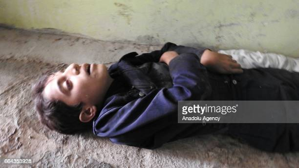 Body of a children is seen after a suspected chlorine gas attack by Assad Regime forces to Khan Shaykhun town of Idlib Syria on April 4 2017