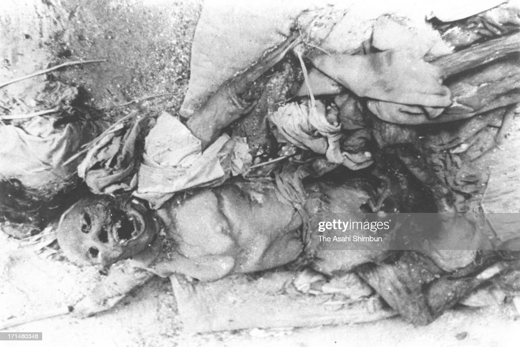 A body of the victim of Nagasaki atomic bomb is seen in August 1945 in Nagasaki, Japan. The world's first atomic bomb was dropped on Hiroshima on August 6, 1945 by the United States at the end of World War II, killing an estimated 70,000 people instantly. Three days later another atomic bomb was dropped on Nagasaki. With the effects of radiation, many thousands more dying over the following years and the number of the victims are thought to be approximately 340,000 people.