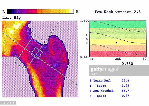 Bone Mineral Density Test Femoral Neck This Methods Measures The Subject's Bone Mineral Density Bmd And Can Detect Osteopenia A Decrease In Bone...