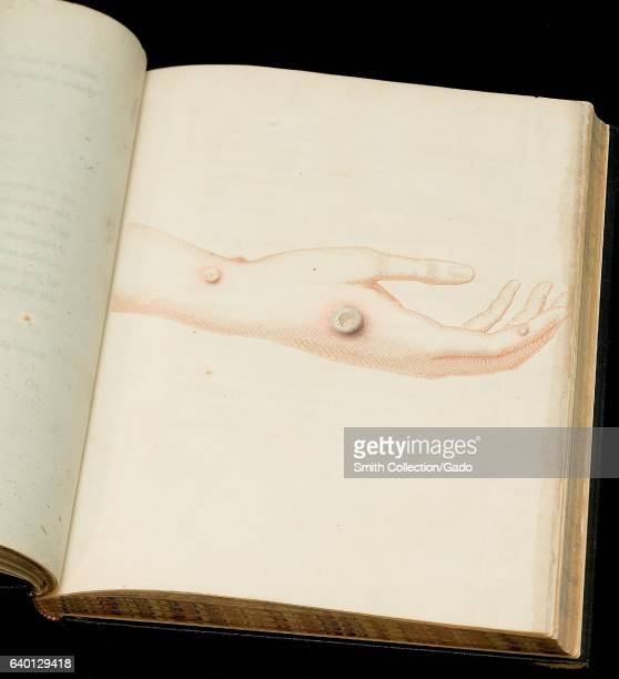 Book open to a page containing a color etching depicting a hand and wrist with cowpox lesions from Inquiry into the causes and effects of the...
