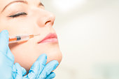 botox woman fillers spa facial young treatment syringe injecting injection skin lips concept - stock image