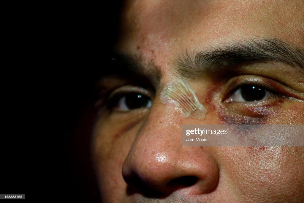 Boxer <a gi-track='captionPersonalityLinkClicked' href=/galleries/search?phrase=Juan+Manuel+Marquez&family=editorial&specificpeople=4202669 ng-click='$event.stopPropagation()'>Juan Manuel Marquez</a> during a press conference after his victory against Manny Pacquiao at Presidente Intercontinental Hotel on December 14, 2012 in Mexico City, Mexico.