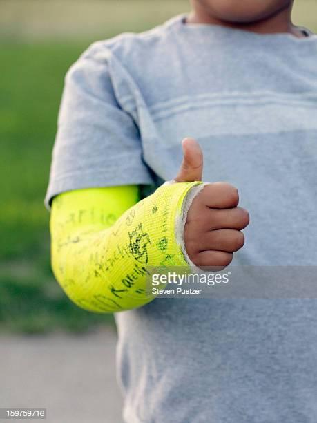 Boy giving thumbs up sign with broken arm in cast