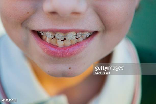 boy in white braces