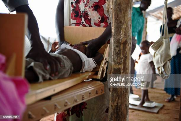 A boy is weighed on a measurement table after being diagnosed with severe malnutrition at a clinic run by Doctors Without Borders in the UNMISS IDP...