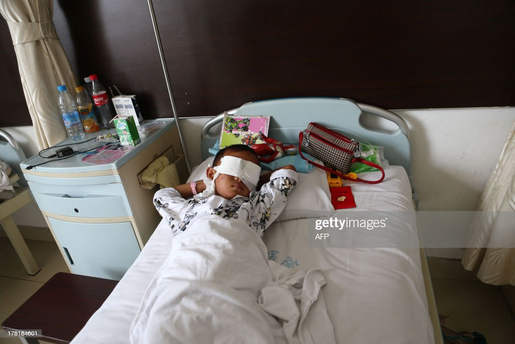 A boy lies on his hospital bed with his eyes covered with bandages in a hospital in Taiyuan, north China's Shanxi province on August 27. The six-year-old boy from northern China was drugged and had his eyes gauged out, reports said, in a gruesome attack that may have been carried out by a ruthless female organ trafficker. CHINA