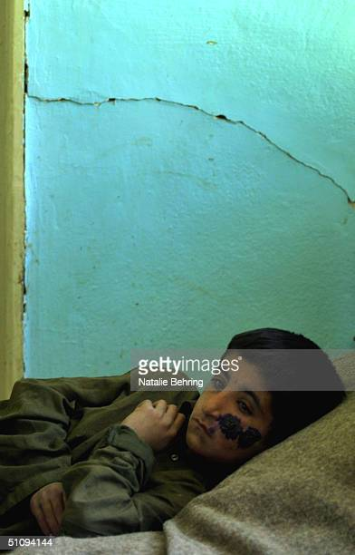 Boy Suffering From Cutaneous Leishmaniasis A Disfiguring And Disabling Skin Disease Lies In A Hospital Bed As He Undergoes Treatment May 8 2002 In...