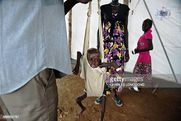 A boy who is suffering from severe malnutrition is weighed at a clinic run by Doctors Without Borders in the UNMISS IDP camp in Juba on May 9 2014...