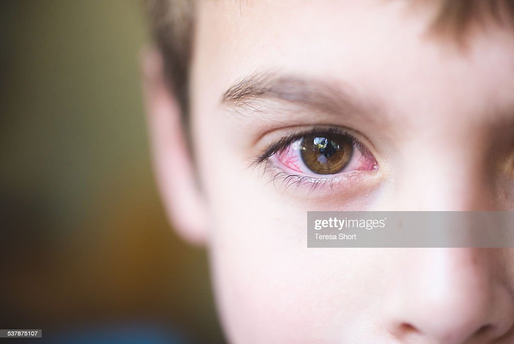 Boy with conjunctivitis or pink-eye