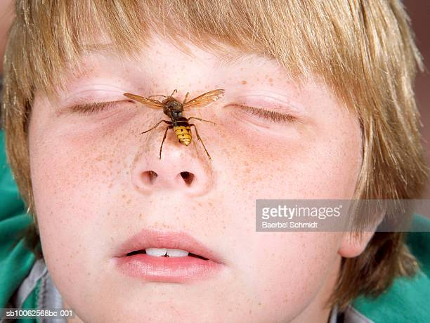 Boy (10-11) with eyes shut and wasp crawling on nose, close-up