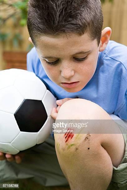 Junge mit grazed Knie