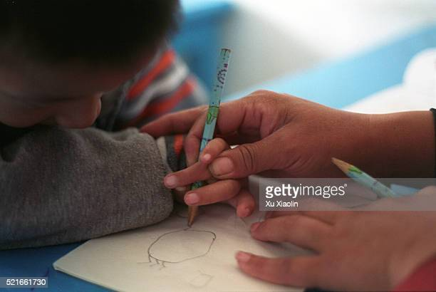 Boy With Hand Malformations is Helped to Draw