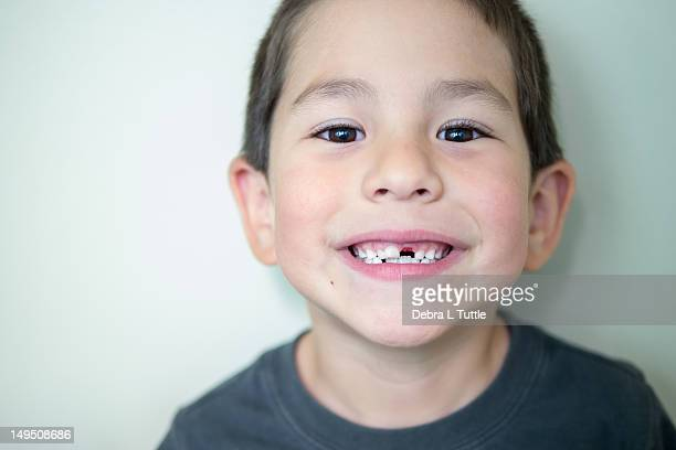 Boy with missing front tooth