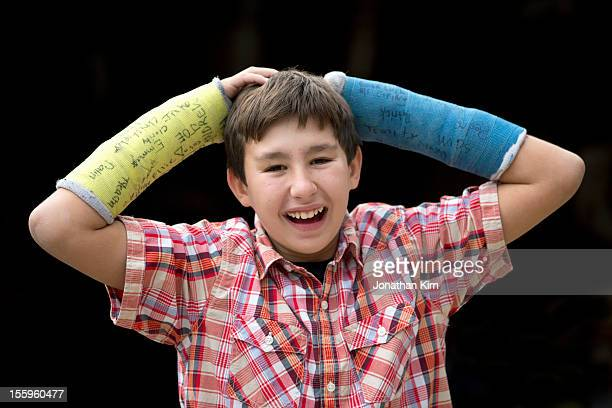 Boy with two broken arms with happy smile.