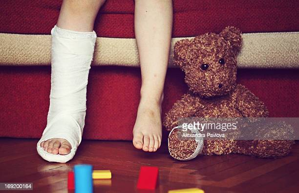 boy's foot in cast, teddy bear's foot bandaged