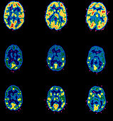 Brain Activity and Cocaine Use