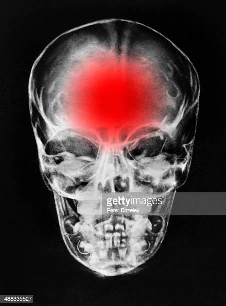 Brain damage/tumour/ headache