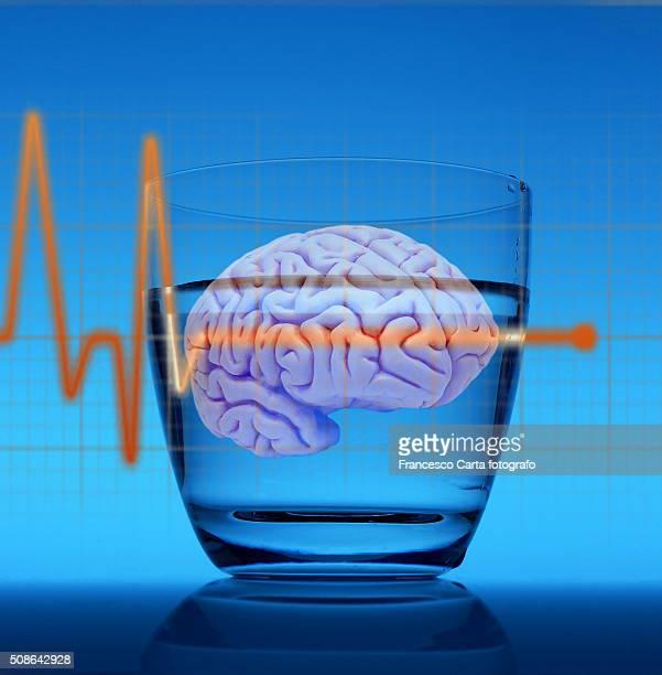 Brain electroencephalogram