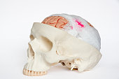 Guaze wrapping around brain model demonstring brain injury on the white background