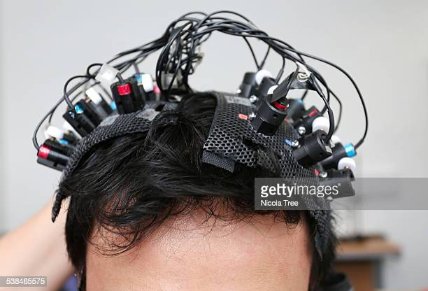 brain monitoring head piece on patients head