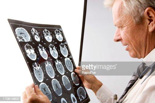 Brain scan exam