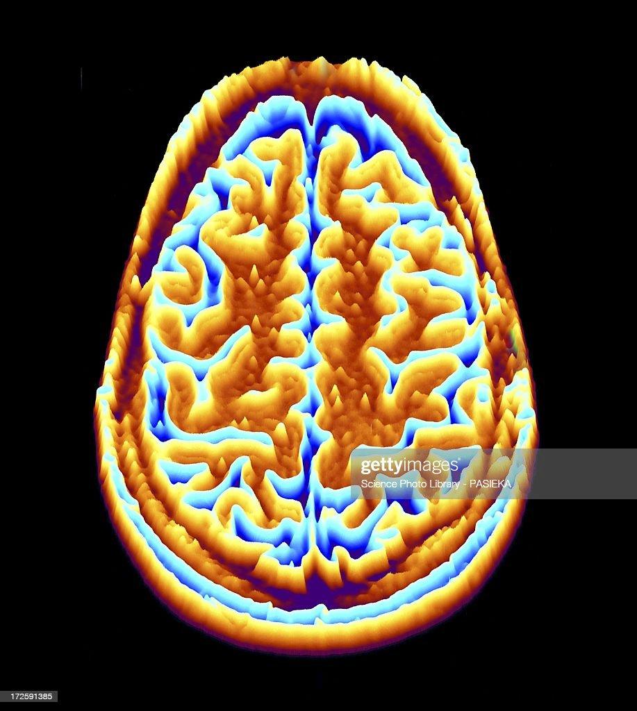 Brain scan, MRI scan, heightmap