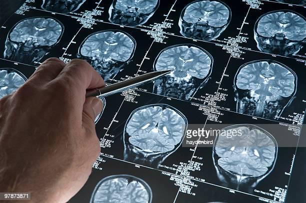 MRI 脳スキャンの頭とスカル、指を指す手