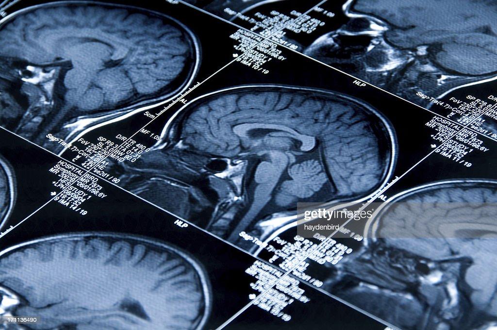 MRI (Magnetic Resonance Image) Brain Scan