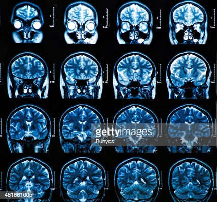MRI Scan Gehirn : Stock-Foto