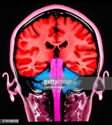 MRI brain scan, sagittal view, colorized