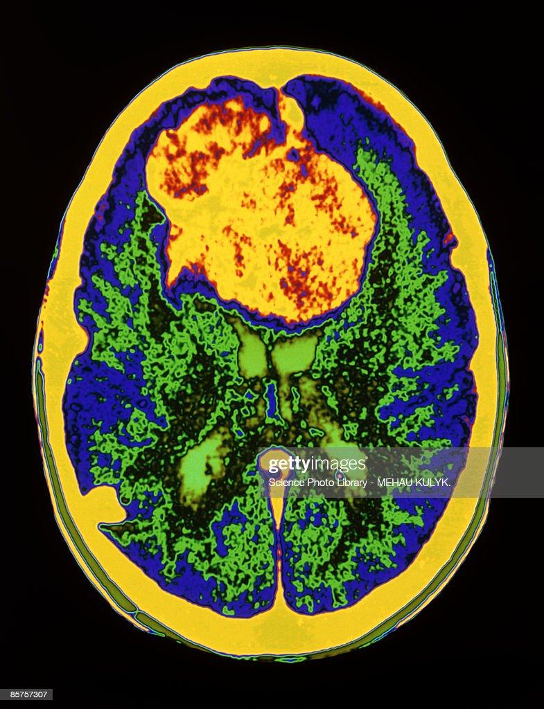 Brain scan showing meningioma