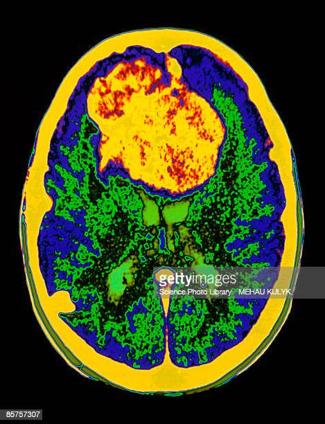Brain scan showing meningioma