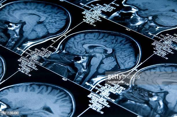 MRI Scan mit Gehirn mehrere Bilder von Kopf und Totenkopf