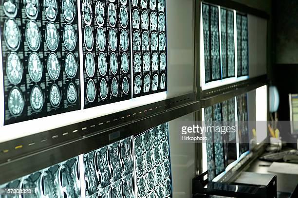 MRI Gehirn-scans auf Leuchtkästen horizontal