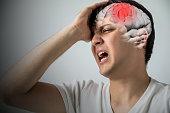 brain stroke concept, headache, cerebral hemorrhage, 3D rendering