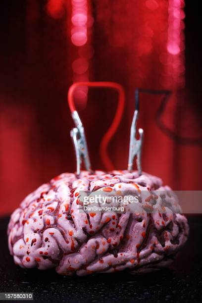 Brain with Electrodes