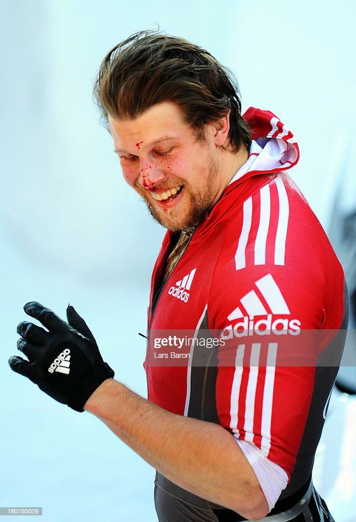 Brake man Jesse Lumsden of Canada, team mate of Lyndon Rush, is seen with a bloody face after the Two Men Bobsleigh final heat of the IBSF Bob & Skeleton World Championship at Olympia Bob Run on January 27, 2013 in St Moritz, Switzerland.