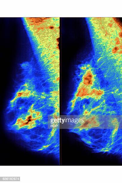 Breast cancer seen in two mammograms